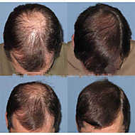 "brazilian jomfru hår menns parykker klærne 6 ""fine mono remy menneskehår 8"" x6 ""parykk replanement"